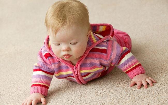 唐氏综合症的危害有哪些?时代T21为孩子作更好打算