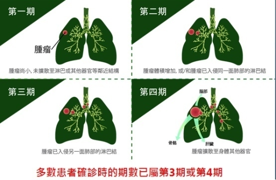 肺癌晚期治疗现新突破 免疫治疗+标靶药+化疗助延存活期